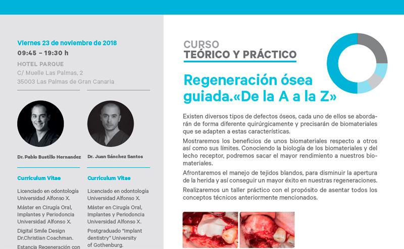 Curso sobre Regeneración ósea guiada: de la A a la Z